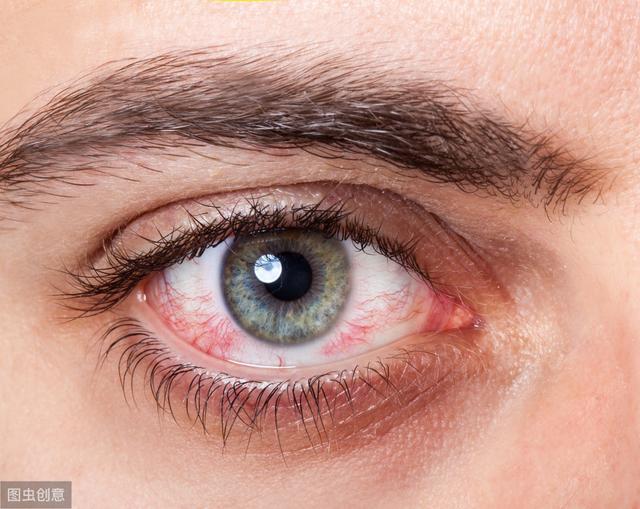 出血 眼球 眼睛也會中風! 眼球內出血伴隨6狀況快就診