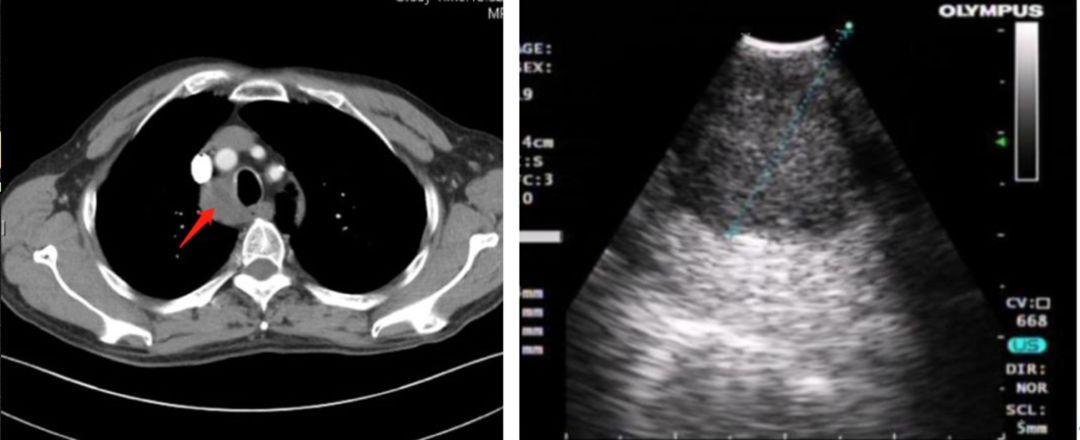 纵隔淋巴结肿大:肺结核?肺癌?or 结节病?清华长庚呼吸与危重症医学科成功开展EBUS-TBNA检查