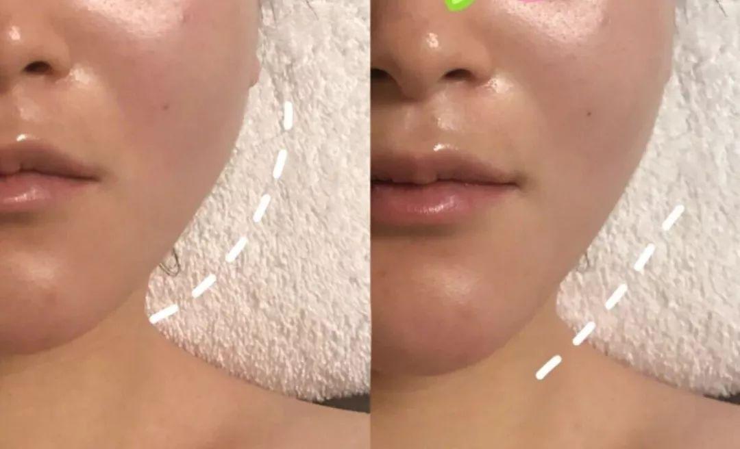 为什么一次面部拨筋,能同时解决排毒 淡斑 瘦脸 抗衰 手把手