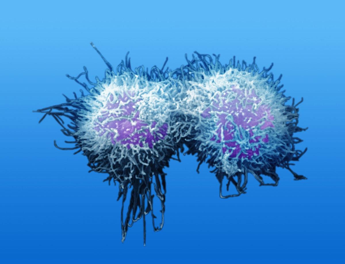 体内有癌,身体往往有四个标志,占的越多,提示癌症进展的越快