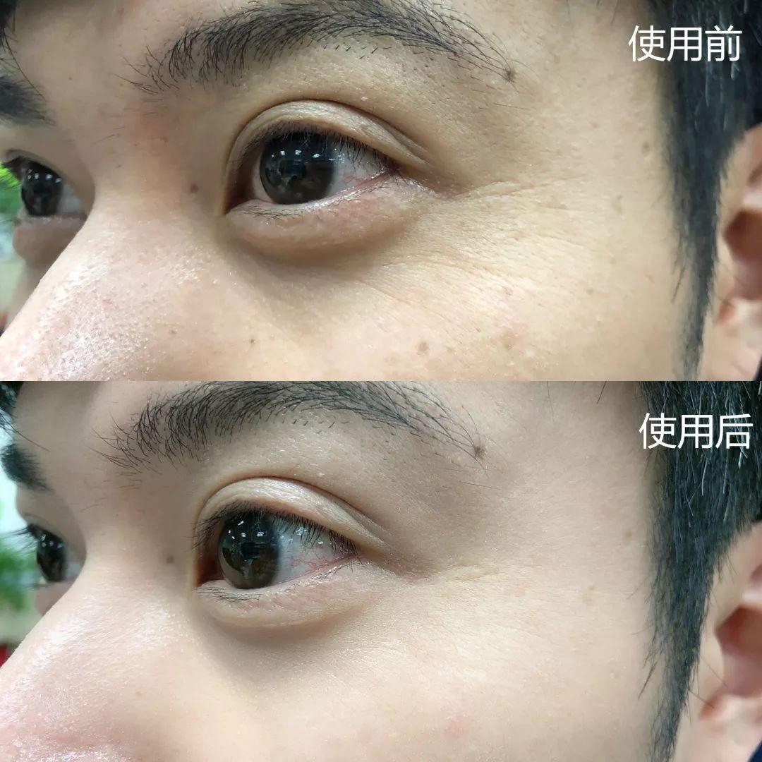 用这支世界上最有效的抗老成分做成的精华,3周让你细纹消失,粗糙毛孔变光滑! v118.com