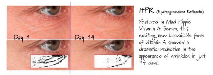 用这支世界上最有效的抗老成分做成的精华,3周让你细纹消失,粗糙毛孔变光滑! imeee.net