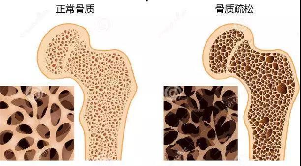 一半以上65歲以上女人患骨質疏松癥,預防要注意這兩方面