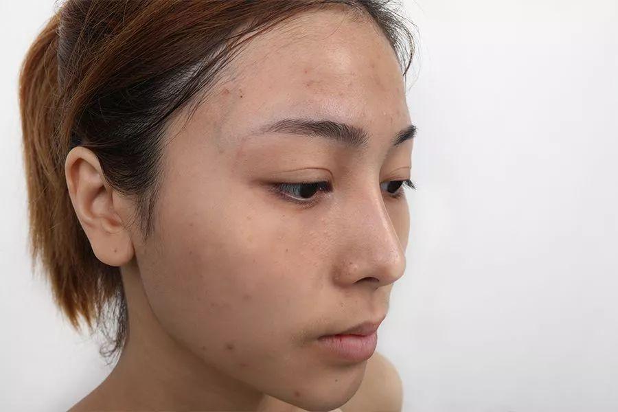 柚子皮的白色部分敷在脸上去,还是 有问必答 快速问医生