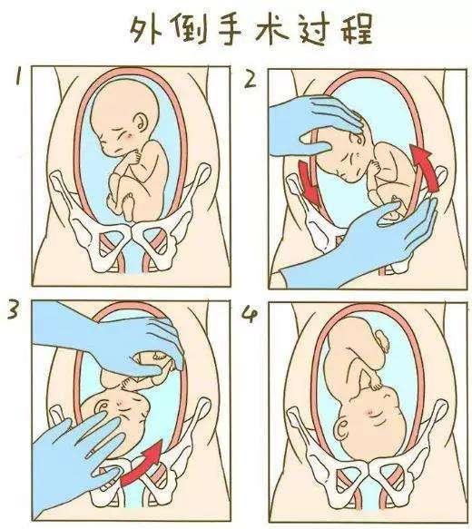 我强插妈妈的嫩穴_运动能提升准妈妈的身体素质和胎儿的活跃度,宝宝爱动就有机会调整