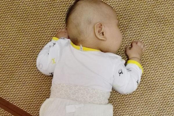 婴儿脐疝症状图片