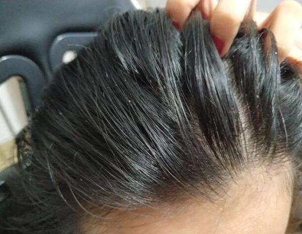 长期头发油,不想每天洗头的话,这4招学起来,头发三天不用洗图片