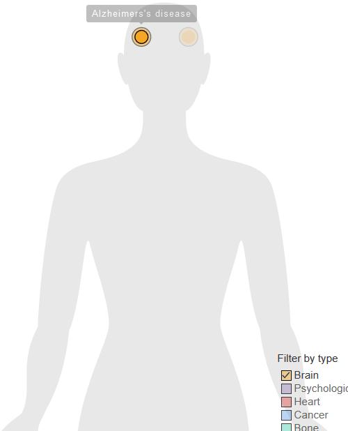 【科普营养】20张人体疾病地图,揭秘不锻炼的坏处