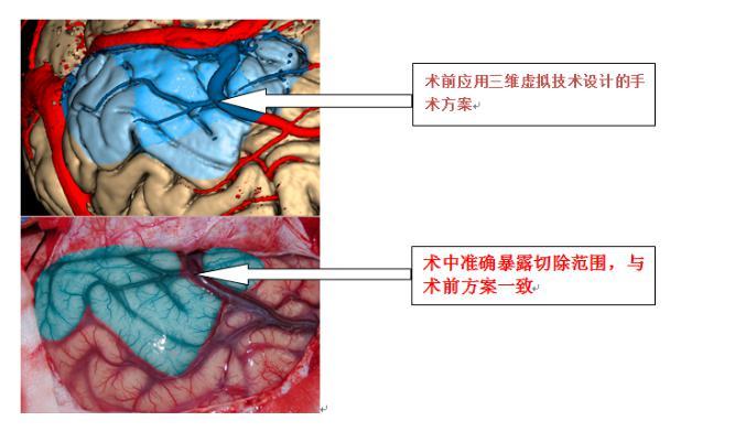癫痫吃药总不好,外科手术可解决反复发作问题