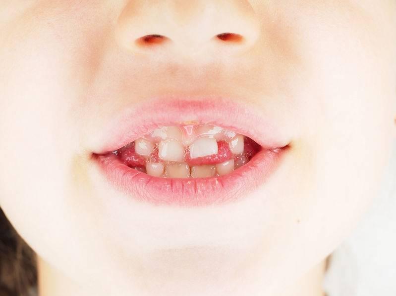 寶寶刷牙有哪些注意事項?