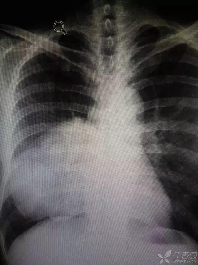 丁香病例 | 确认过眼神,是我看不懂的胸片|病历看不懂