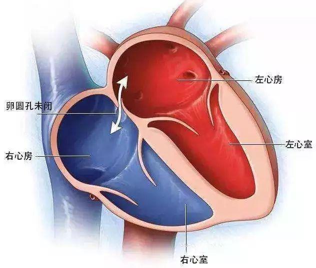 心脏病能要孩子吗_孩子得了心脏病,到底能不能打疫苗?