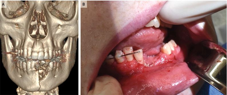 美国 17 岁少年吸电子烟口腔内突发爆炸,致下颌骨折 | 丁香早读|口腔烟