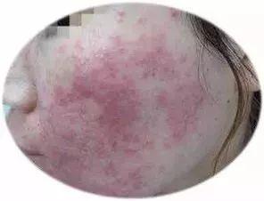 [20岁女孩使用微商面膜,半年变成火星脸!医生:这就像吸食鸦片] 小火星面膜