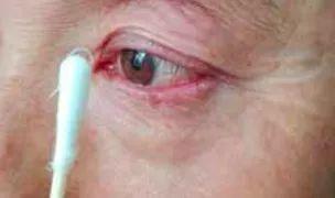 结膜吸吮线虫_吃下减肥药两个月后,她的眼睛里面长满了虫丨眼科恐怖故事02_虫卵