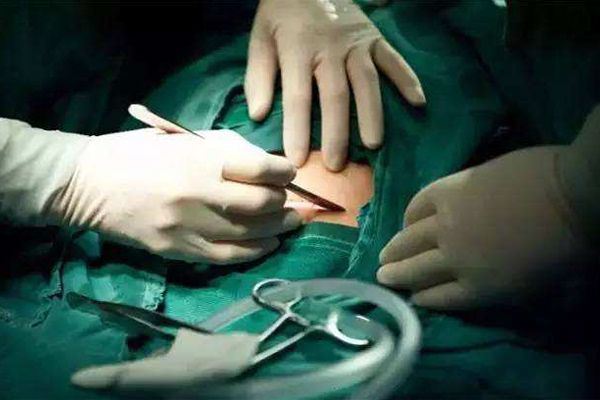 剖腹产刀口护理,产后做好这几件事情,让伤疤恢复到最好状态