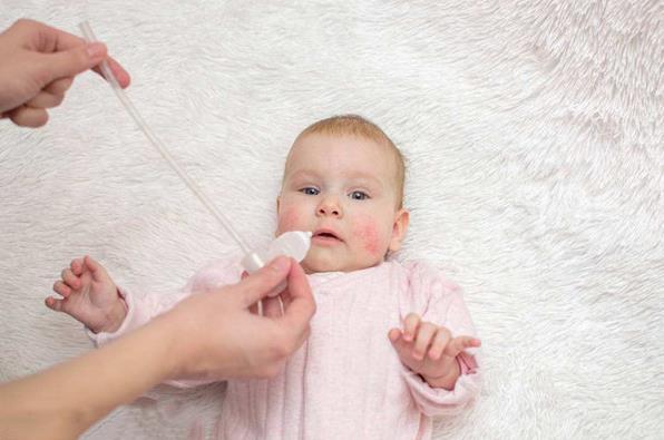 原创             宝宝的湿疹反反复复,真是让妈妈防不胜防,怎么办才好?