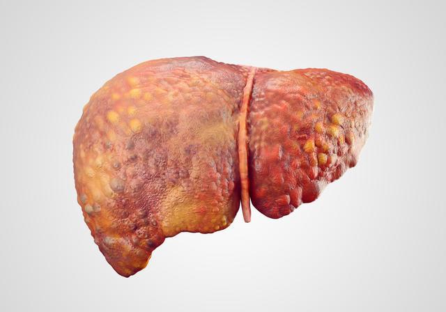 """肝癌的""""祸根""""找到了,医生劝告:4个生活习惯再做,肝容易癌变"""