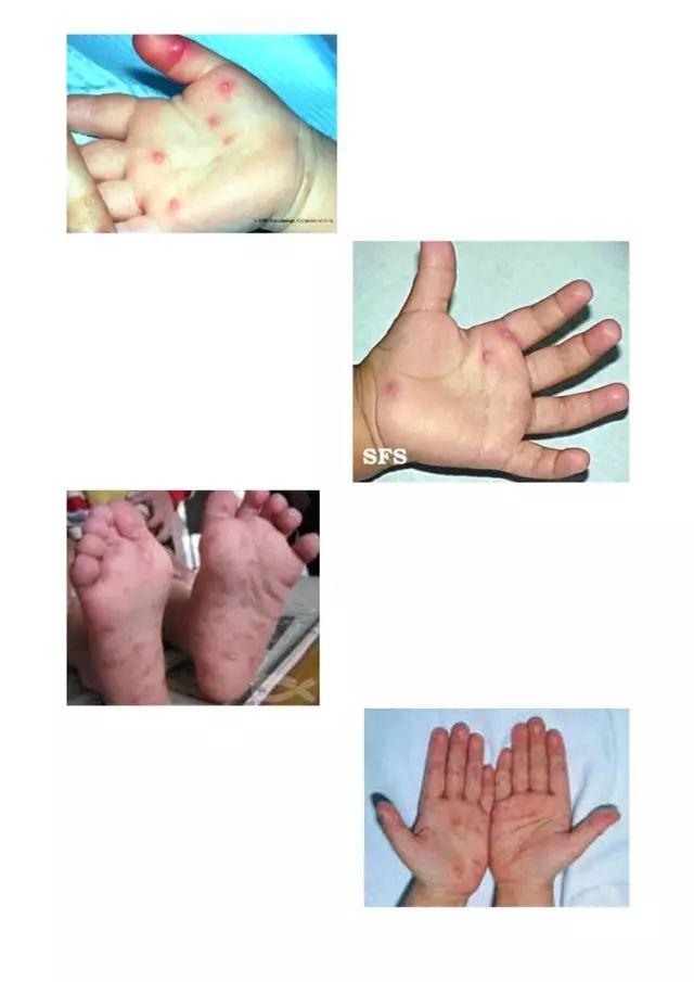 夏季防病 | 注意卫生,手足口病早防治!