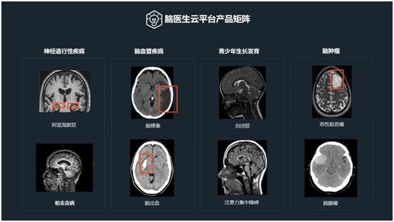 快讯| 脑医生Dr.Brain完成数千万元A轮融资,全方位展开商业网点布局