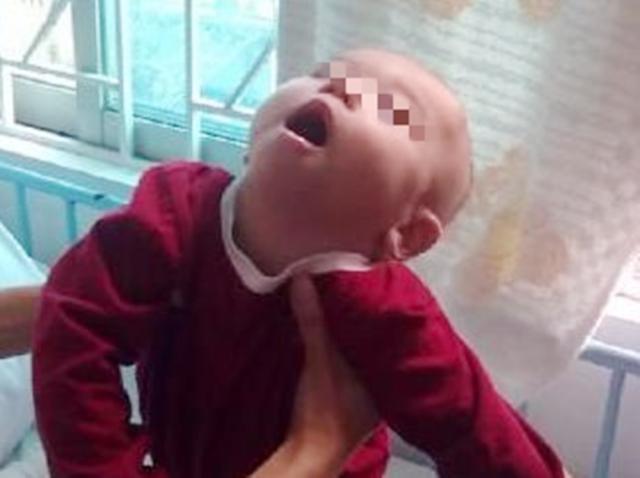"""枕头下的樟脑丸,导致1岁宝宝"""""""