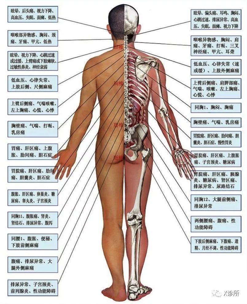 腰椎痛图片大全