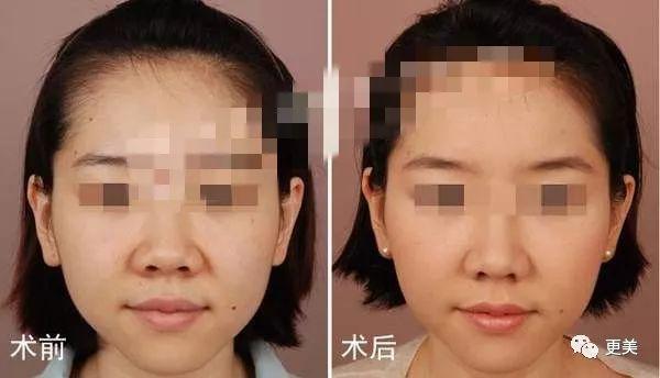 (图为缩鼻翼手术前后对比)