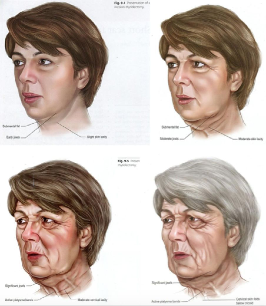 身材被吐槽的张子枫也瘦成了纸片人?但转过脸的那一刻真相了 v118.com
