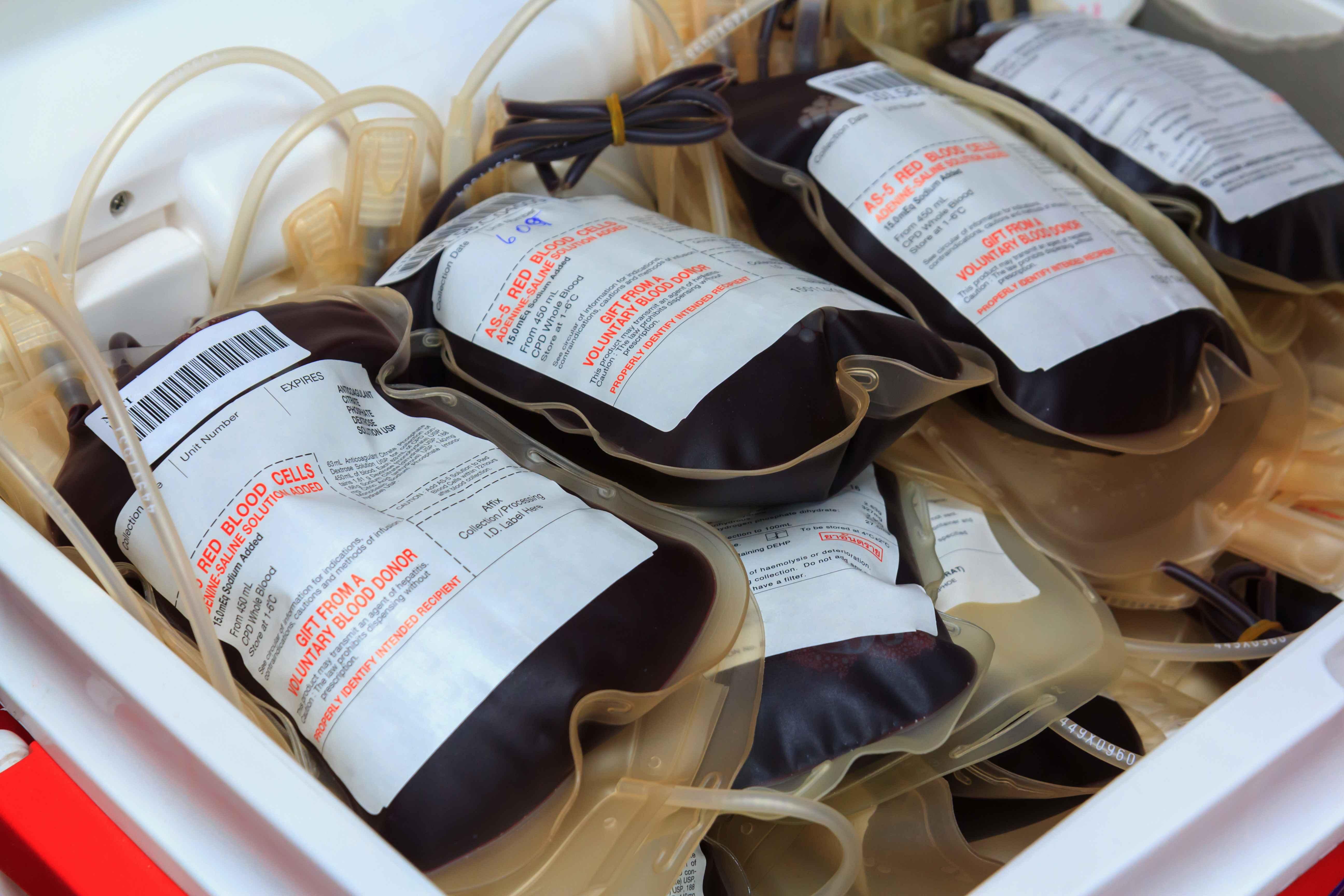 为何很多人不愿意献血?医生解释:背后这些内幕,你真知道吗?? v118.com