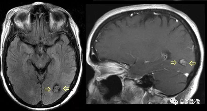顱內海綿狀血管瘤癥狀
