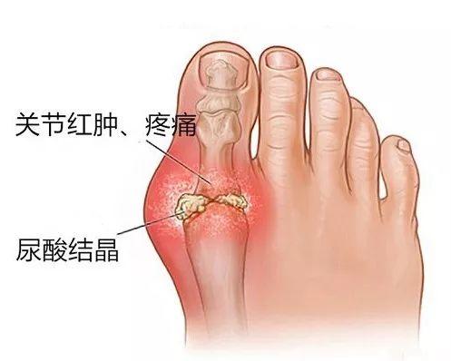 脚踝扭伤 or 痛风发作 ?别误解了关节疼痛 v118.com