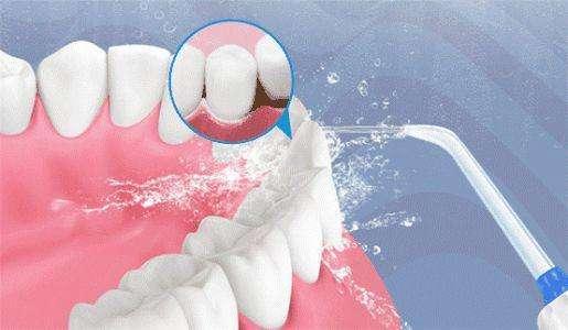 牙科医生任欢科普:牙齿矫正期间应当如何预防蛀牙?