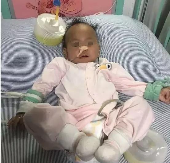 1歲女嬰胃被撐破,差點喪命!醫生呼籲:別再強行給孩子喂飯了