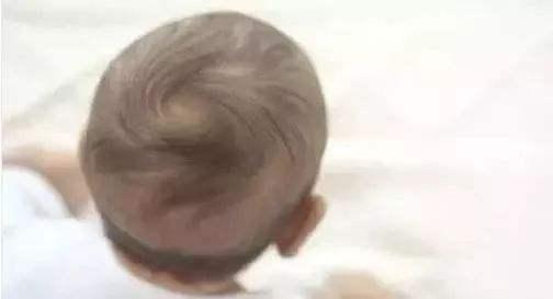 原創             宝宝缺锌的病症有什么,一般不超出这一時间,儿童补锌的最好時间