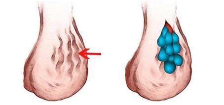 最粗的静脉_腿上血管明显是静脉曲张嘛 静脉曲张的常识和方法都在这里
