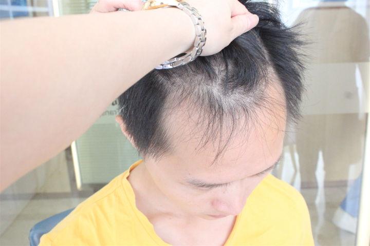 脱发人群多不多?听说植发可以治疗脱发问题!