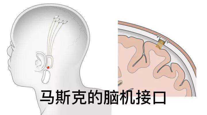 马斯克演绎 黑客帝国 ,芯片直连大脑,激光开颅放置,可用iPhone操控 接口