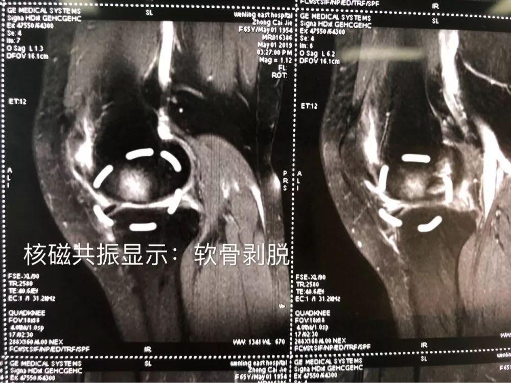 【技术看台】台州市中西医结合医院成功完成一例膝关节置换术!