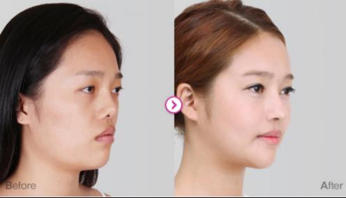 """韩国鼻子整形还在跟""""风""""?博朗温医院告诉你鼻子与脸"""