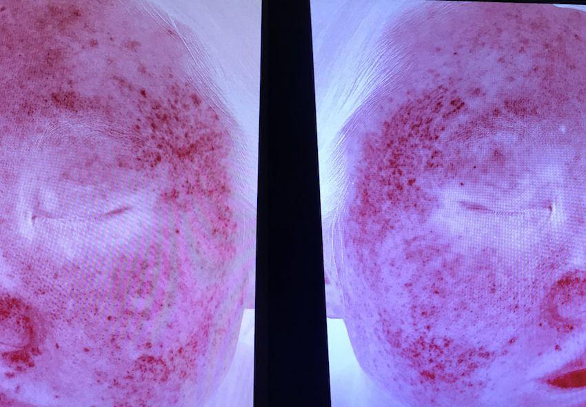 敏感痘肌毛周角化的烂脸变美指南 我给自己误诊了10多年的皮肤问题