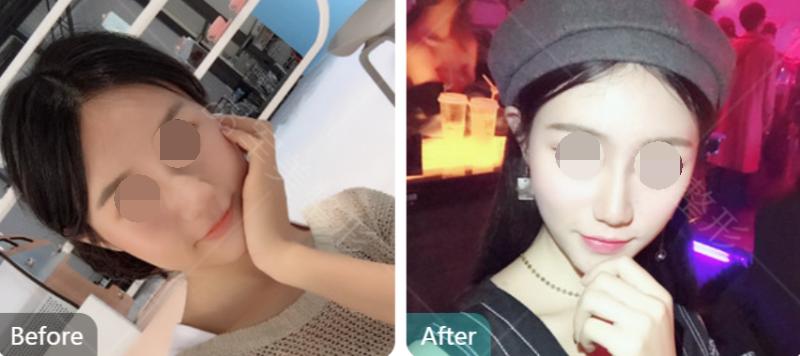 广州韩式隆鼻术后会不会留疤痕?