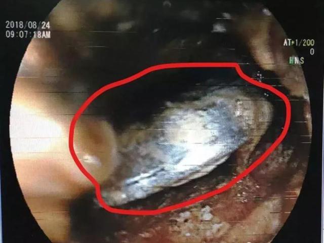 这枚小小的电池,可能腐蚀娃的喉管和心脏,很多家庭有,别不重视