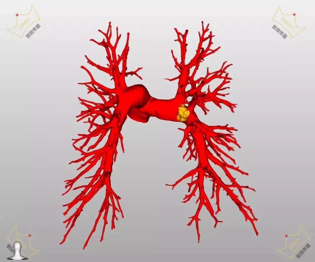 山东省胸科医院运用高端影像技术精准完成肺段手术