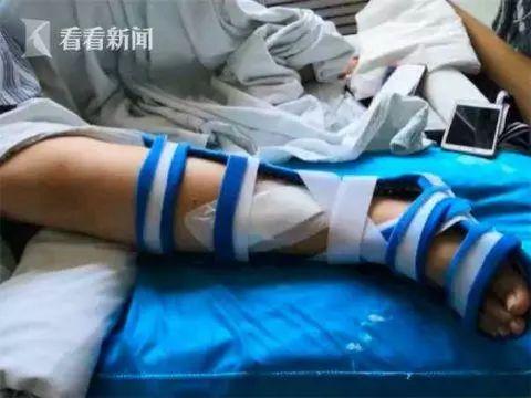 视频 | 10岁女孩玩网红蹦床摔断右腿 监控拍下揪心一幕