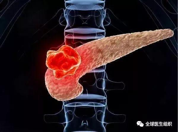 【推荐】|必读|《科学》刊文最新研究成果:胰腺癌免疫治疗新方法_淘网赚