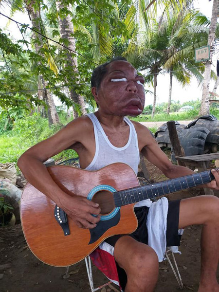 <b>菲律宾男子患怪病五官肿胀4倍 无力支付医药费</b>
