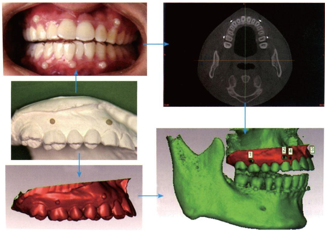 用于保护股骨柄锥体的整形外科器械系统的制作方法_X技术