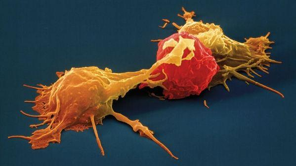 NK细胞:提高免疫力,抗击肿瘤