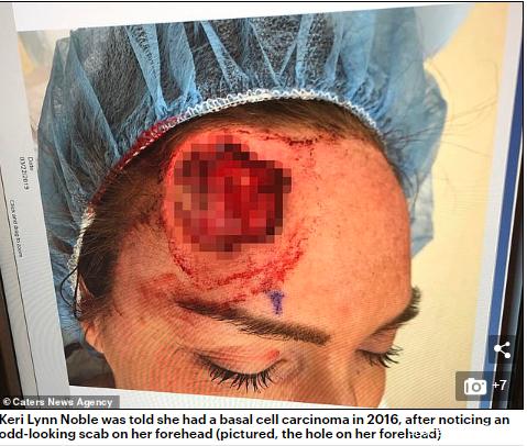 <b>高尔夫球般大的洞!女子晒日光浴,皮肤癌二度复发,不得不整形</b>