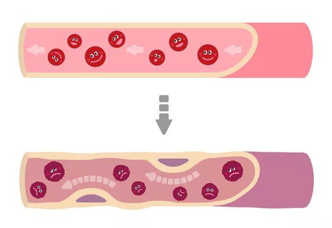 吃完这些血管就能软化?真能管用的其实是……